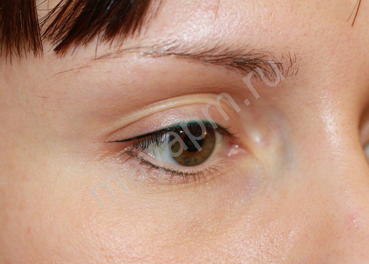 Коррекция зрения сетчатки глаза